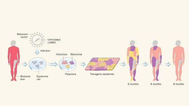 'Artificial' Skin Breakthrough