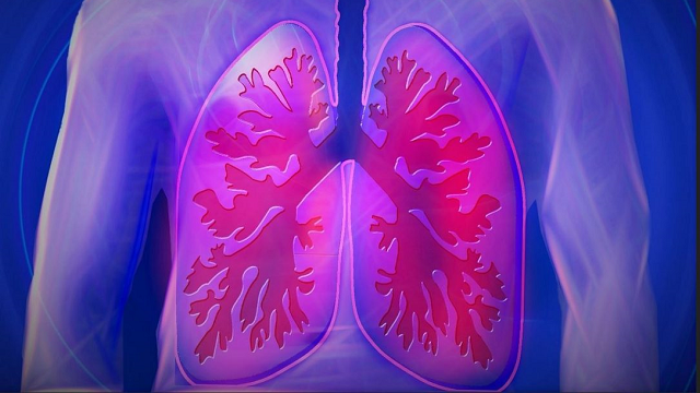 Clues to earlier diagnosis of deadly lung disease