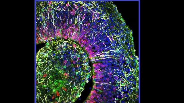 Brainwaves detected in mini-brains grown in a dish