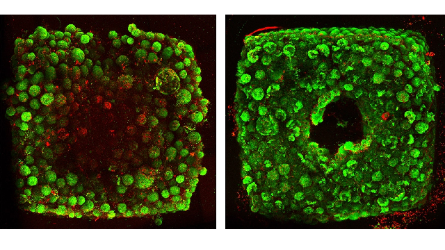 A new approach to 3D printing human organs