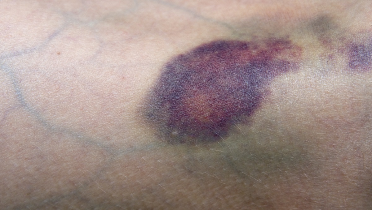 Bruised leg showing veins. Main focus is on bruise at center of image.